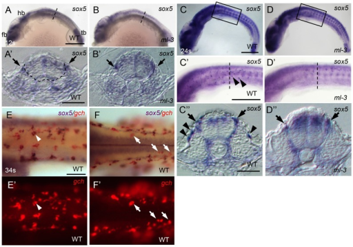 Expression pattern of medaka sox5 in WT and ml-3 mutant embryos.(A, C, E, F) WT. (B, D) ml-3 mutant. (A′, B′, C″, D″) Transverse sections. (E, F) sox5 (blue) and gch (red). (A–E, E′) Lateral views. (F, F′) Dorsal views. (A) In WT embryos at 12 somite stage (12 s, 41 hpf), sox5 is expressed in premigratory NCCs (see also section in A′, black arrow) as well as in dorsal neural tube and CNS ranging from forebrain (fb) to hindbrain (hb), and in tailbud (tb). The boundary between neural tube and somite is indicated by dotted line. (B) In ml-3, the sox5 expression pattern is not markedly altered. In particular, when observed in section (B′), premigratory NCCs are positive for sox5. (C, C′, C″) At 24 somite stage (24 s, 58 hpf), sox5-expressing cells are found in dorsal neural tube, premigratory NCCs (arrows in C″) and migrating NCCs between neural tube and somite and lateral trunk surface (black arrowheads in C′, C″) pathways in WT. sox5-expressing cells scattered on lateral trunk surface are prominent in WT (C′, C″). (D, D′, D″) In ml-3, sox5 expressing cells are absent from lateral trunk surface (D′, D″), whereas sox5 expression remains in dorsal neural tube, premigratory NCCs (black arrows) and migrating NCCs between neural tube and somite (D″). Boxed portion in C, D are magnified in C′, D′, respectively. (A′, B′, C″, D″) Transverse histological section from embryos at the level as indicated by dotted line in A, B, C′ and D′. (E, E′) sox5-expressing cells on lateral trunk surfaces at 34 somite stage (34 s, 74 hpf) also express gch. White arrowhead represents an example of gch-positive sox5-expressing cell. (F, F′) On dorsal trunk surface, some sox5-negative gch-positive cells were detected (white arrows). Scale bars: (A, C) 200 µm; (C′) 100 µm; (A′, C″) 20 µm; (E) 50 µm.