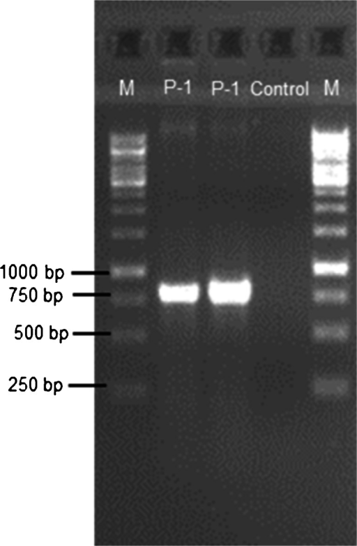 Agarose gel electrophoresis of PCR products of rhamnosyl transferase gene; M—1 kb DNA ladder; P-1—Pseudomonas sp. P-1 strain; Control—sample without DNA (1 % agarose gel)