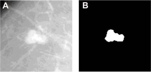 Example of a malignant mass ROI (A) and its corresponding segmentation mask (B).