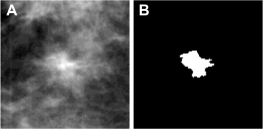 Example of an FP ROI (A) and its corresponding segmentation mask (B).