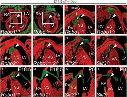Disrupted Slit-Robo signalling results in membranous ventricular septum defects. (A–L) immunohistochemistry for cardiac Troponin I (cTnI) and DAPI on Robo1+/+ (A, C, and I), Robo1−/− (B, D, and J), Robo2−/− (E), Robo1−/−;Robo2−/− (F), Slit2−/− (G), Slit3+/+ (K) and Slit3−/− (H and L) hearts. The valves and the membranous ventricular septum are visible as green DAPI staining. White arrowhead points to the presence or absence of the membranous ventricular septum (see Table 1 for numbers of embryos analysed). VS, (muscular) ventricular septum. For other abbreviations, see the legend of Figure 1. Scale bars depict 100 µm.