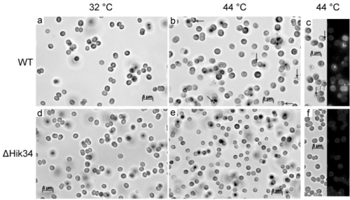 Light and fluorescent microscopy pictures of wild-type (a, b, c) and ΔHik34 mutant (d, e, f) cells. Cells were grown 24 h at 32 °C (a, d) and thereafter incubated 24 h at 44 °C (b, c, e, f). Images of cells stained with Nile Red (c, f) were received from two channels—bright field (left panel) and fluorescence (right panel). Arrows point to unidentified inclusions. Cells were analyzed in 3 independent experiments: typical microscopic photos of cells are shown.