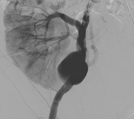 Digitally subtracted angiography showing the false aneurysm at the junction of the transplanted renal artery with the right external iliac artery.