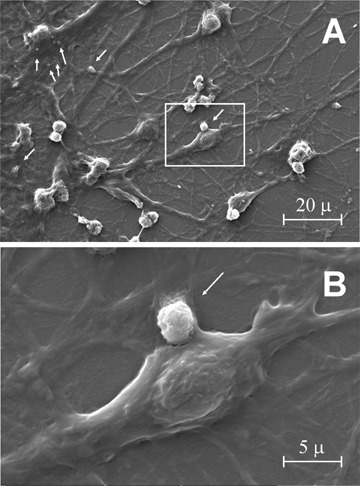 Analysis by scanner electron microscopy of neuronal cultures. Cells produce and release extracellular vesicular structures (indicated by arrows). A detail (in the white box) of part A was observed at higher magnification (B).