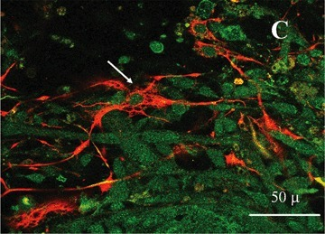Different localization of the astrocyte-specific glial fibrillary acidic protein (GFAP, red fluorescence), and neuronspecific neurofilament protein, 68-kD component (NF68, green fluorescence), in cultures of rat cortical neurons.