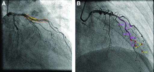Quantitative coronary angiography. Coronary artery plaque area (A) and coronary artery tortuosity (B) assessed in the left anterior descending artery.