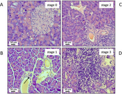 Representative examples of pancreatic lesions ranging from stage 0 (A) to 3 (D).Sections of paraffin-embedded pancreatic tissue were stained with H&E. (A) healthy pancreas; stage 0. (B) minimal lymphocytic infiltration of the subepithelial layer of one larger duct (arrow); no parenchymal destruction; stage 1. (C) more extended lymphocytic infiltration; beginning destruction of acinar tissue; stage 2. (D) severe periductal inflammation with progressive parenchymal destruction; stage 3.