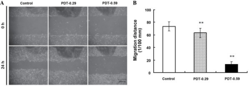 9-hydroxypheophorbide α-PDT suppressed cell migration in a wound healing assay. (A) Monolayer of laryngeal cancer AMC-HN-3 cells were lesioned by a scraper in a petri dish. Repair of the lesion by cell migration following PDT was photographed 24 h later. (B) Total migrating distance of AMC-HN-3 cells from the edges of the lesion was measured 24 h following PDT. Data are presented as the mean ± standard deviation from three independent experiments. **P<0.01 vs. control. Scale bar, 500 µm. PDT, photodynamic therapy.