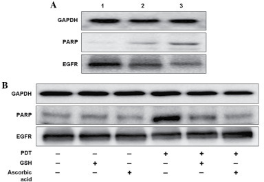 9-HPbD-PDT induced the cleavage of PARP (89 kDa), and inhibited the expression of EGFR (170 kDa). Laryngeal cancer AMC-HN-3 cells were treated with a sublethal dose of PDT, collected 24 h later, and subjected to western blot analysis. GAPDH (37 kDa) was used as a control. (A) Lane 1, control (no treatment); lane 2, 0.29 µg/ml 9-HPbD-PDT; lane 3, 0.59 µg/ml 9-HPbD-PDT. (B) Cells were treated with 0.59 µg/ml 9-HPbD-PDT alone or pretreated with 5 mM GSH or 2.5 mM ascorbic acid. GAPDH, glyceraldehyde 3-phosphate dehydrogenase; PARP, poly ADP-ribose polymerase; EGFR, epidermal growth factor receptor; 9-HpbD, 9-hydroxypheophorbide α; PDT, photodynamic therapy; GSH, glutathione.