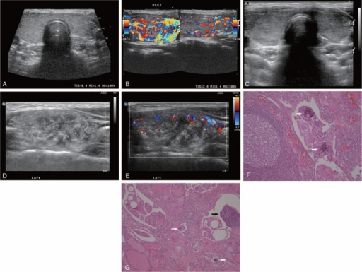 Serial ultrasonography of a 22-year-old woman who had been diagnosed with Hashimoto's thyroiditis. At the age of 13 years old, initial ultrasonography of the neck revealed diffusely heterogeneous and enlarged thyroid lobes bilaterally, with diffusely increased vascularity without any focal mass or calcifications. This was compatible with thyroiditis (A, B). Three years later, follow-up ultrasonography revealed more heterogeneous parenchymal echogenicity compared with the previous examination (C). At the age of 22, innumerable microcalcifications were detected, with an ill-defined hypoechoic lesion replacing almost the entire left lobe of the thyroid gland and increased vascularity (D, E). Histopathological sections showed lymphocytic follicles with activated germinal centers and aggregates of tumor cells and several psammoma bodies (white arrows) (hematoxylin-eosin [H&E] stain, × 100) (F). Tumor cell aggregates (black arrow) were present in the lymphatic spaces, and a few concentric calcified psammoma bodies (white arrows) were noted (H&E stain, × 100) (G).