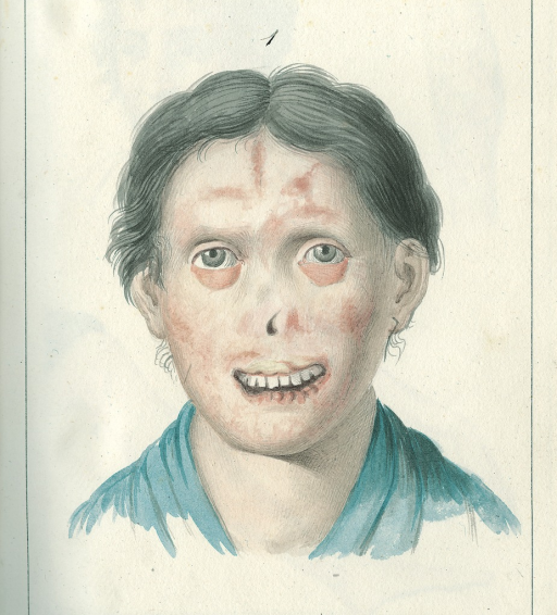 <p>Illustration of Agata Lapieruz who lost her nose, upper lip, and bottom half of eyelids after being afflicted by &quot;reddish patches covered with tiny blisters that soon dry up and flake off&quot;. Rapidly changing form and location, the sores eventually formed crusts and attacked the soft flesh of the face.</p>