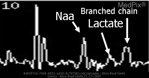 MR spectroscopy demonstrates a peak at 0.9 ppm representing branched chain amino acids.  A peak is present at 1.33 ppm consistent with lactate.  This is consistent with an aminoacidopathy/aminoaciduria disorder.