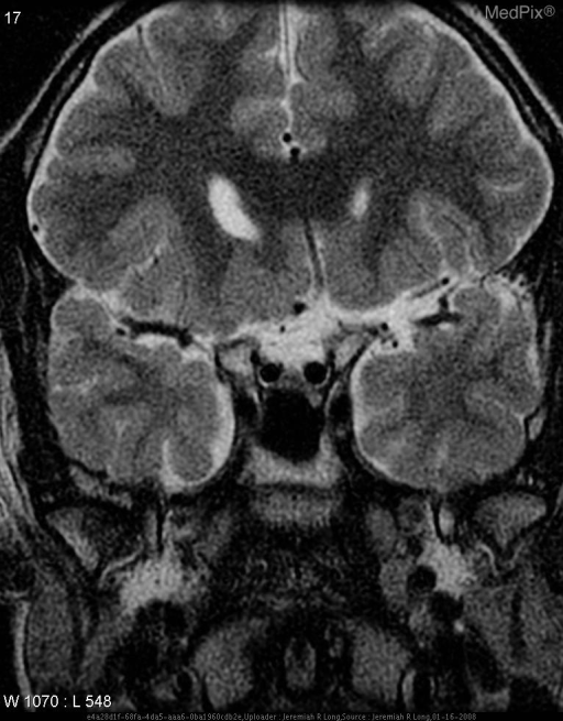 Axial T2 image through the mid brain demonstrates absence of the septum pellucidum. Coronal T2 images again demonstrate absence of the septum pellucidum as well as hypoplasia of the optic tracts, chiasm and nerves.
