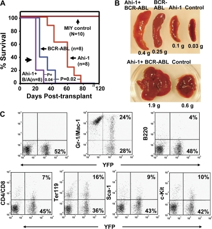 Overexpression of Ahi-1 induces a lethal leukemia in vivo and these effects can be enhanced by cotransduction of BCR-ABL. (A) Survival curves of NOD/SCID-β2M−/− mice injected with 5 × 106 BaF3 cells transduced with MIY, Ahi-1, BCR-ABL, and Ahi-1 plus BCR-ABL. 8–10 mice were used per each group. (B) Spleen (top) and liver (bottom) weight of mice injected with MIY control cells, Ahi-1–transduced cells, BCR-ABL–transduced cells, and cells cotransduced with Ahi-1 and BCR-ABL. (C) FACS profiles of YFP+ BM cells isolated from a representative moribund mouse with leukemia, after injection of Ahi-1–transduced cells and showing expression by the YFP+ cells of Gr-1/Mac-1, B220, CD4/CD8, Ter119, Sac-1, and c-kit.