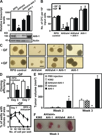 Knockdown or overexpression of AHI-1 in human K562 cells mediates their transforming activity in vitro and in vivo. (A) Q-RT-PCR analysis of the levels of AHI-1 transcripts relative to GAPDH in FACS-purified RPG vector–transduced K562 cells, AHI-1/sh4 cells (with suppression of AHI-1), AHI/sh4 + AHI-1 cells (coexpression of AHI-1 in AHI-1/sh4 cells), and AHI-1 cells (AHI-1 overexpressed cells, top). Western analysis (bottom) of AHI-1 expression in the same transduced cells with an anti–AHI-1 antibody. (B) The numbers of CFC colonies produced in semisolid cultures ± GF (IL-3, GM-CSF, SF) in the same transduced cells. (C) The appearance of CFC colonies produced in semisolid cultures ± GF as shown in B. Bar, 250 μm. (D) Percentage of single control K562 cells or AHI/sh4 cells generating clones (top) and clone size distributions obtained from these cells after being cultured for 7 d (bottom). (E) NOD/SCID-β2M−/− mice were injected subcutaneously with 107 control K562 and transduced cells. Tumor volume is expressed as mean ± SEM areas of each group (n = 4). (F) The appearance of tumors generated by the same cells as shown in E. Values shown are the mean ± SEM of triplicate measurements. * indicates significantly different from K562 or RPG control cells.