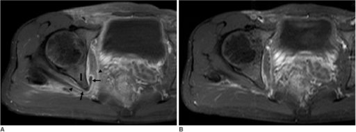 28-year-old man with diffuse pelvic infection and reactive bursitis of obturator internus bursa.A. Transverse fat-suppressed Gd-enhanced T1-weighted MR image shows fluid collection with enhanced thin peripheral rim (arrows) between ischium (I) and obturator internus muscle and tendon (arrowheads). Inflammation was also noted in right inguinal area, lesser pelvis, and along sciatic nerve.B. Follow-up MR image 12 days later showing complete disappearance of fluid in obturator internus bursa and of soft tissue enhancement in right pelvic area.