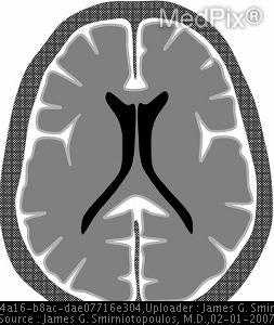 Pia-arachnoid (Leptomeningeal) Pattern. Schematic diagram.  The enhancement follows the along the pial surface of the brain and fills the subarachnoid spaces of the sulci and cisterns.  This is often described as leptomeningeal enhancement.