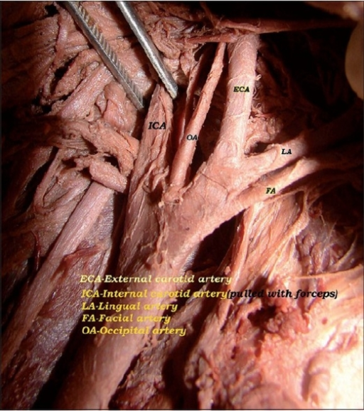 Branches of the right external carotid artery | Open-i