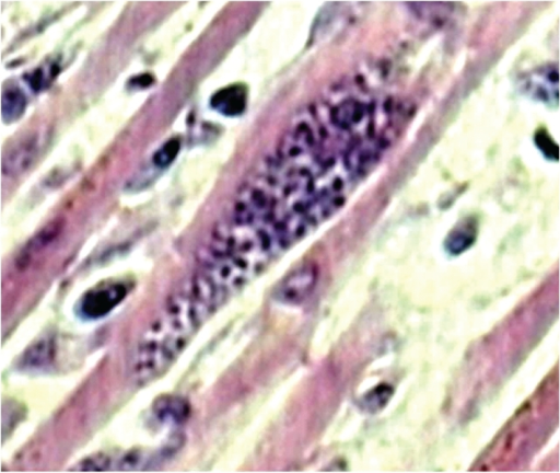 Microscopy of heart shows pseudocyst of toxoplasma gondii in myocardial muscle fiber (H & E ×300).