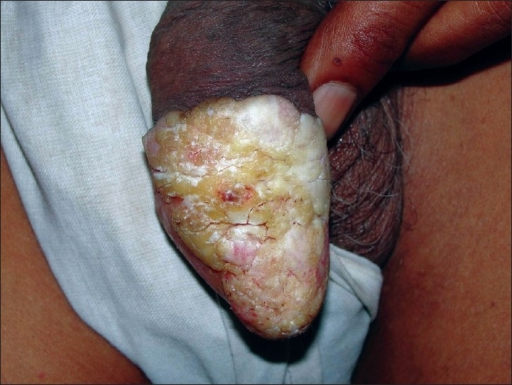 hyperkeratotic plaques on the glans penis | open-i, Skeleton