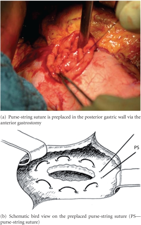 Preplaced purse-string suture (PDS II 2.0 MH plus, 70 cm) at the posterior gastric wall.