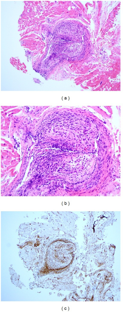 Endomyocardial biopsy 7 months after transplant showing graft vasculopathy. Endomyocardial biopsy demonstrating microscopic changes of concentric intimal proliferation and chronic inflammation resulting in near-total luminal occlusion in the epicardial and the intramyocardial coronary vessels, suggestive of graft vasculopathy. Hematoxylin and eosin stain: (a) low power, (b) high power, and (c) C4d immunostaining. Immunoperoxidase with C4d monoclonal antibody negative.