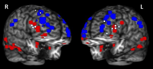 "Summary of activations in brain regions associated with the ventral HotEmo system (red) and the dorsal ColdEx system (blue). The figure shows peak activation voxels from areas showing increased (red) and decreased (blue) activity to emotional distraction, as identified by the studies featured in Table 1. The white geometric shapes identify peak voxels from regions associated with coping with emotional distraction, in women and men. Specifically, for the female subjects, the rhombi identify peak activation voxels from bilateral inferior frontal areas controlling for the subjective ""feeling of being distracted"" (Dolcos and McCarthy, 2006). The triangles identify peak activation voxels from left inferior frontal areas controlling for the objective impact of emotional distraction (Dolcos et al., 2006, 2013; Denkova et al., 2010); and the square identifies the peak activation voxel from a left dlPFC area linked to increased performance in the presence of emotional distraction (Dolcos et al., 2008). For the male subjects, the stars identify peak activation voxels in right dorsal frontal areas linked to increased performance in the presence of emotional distraction (Iordan et al., 2013a). The peak activation voxels are superimposed on a high resolution brain image displayed in a tridimensional view using MRIcro (www.mccauslandcenter.sc.edu/mricro/mricro/). R, Right; L, Left."