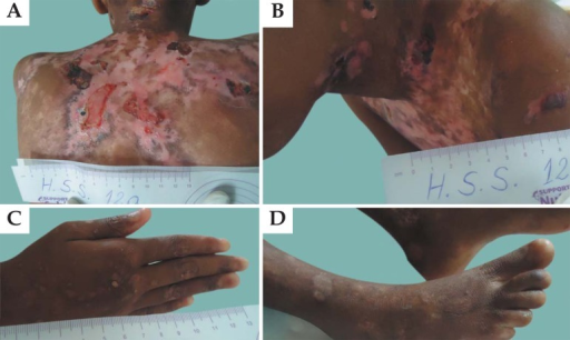 Appearance of lesions in patients with junctional epidermolysis bullosa