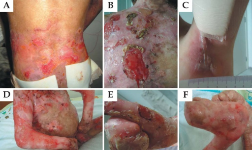Appearance of lesions in patients with dystrophic epidermolysis bullosa