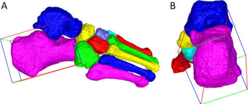 Inertial axes reflecting bone shape. Surface maps of the 7 tarsal and 5 metatarsal bones, with a minimum bounding volume surrounding calcaneus representing the direction vectors for the principal inertial axis (red), second inertial axis (green), and third inertial axis (blue). (A) Lateral view of an exemplar foot, showing that the principal inertial axis reasonably approximates calcaneal pitch; (B) Posterior view of the foot, showing that the second and third inertial axes fail to align with clinically-relevant axes representing the local medial-lateral and inferior-superior axes of calcaneus.