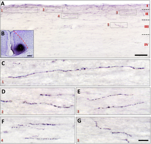Distribution of Pha-L anterograde labeled fibers and terminals in the spinal dorsal horn projected from the ACC. A-B, One sample figure from a sagittal slice (A) showing that Pha-L labeled fibers and terminals were distributed in the laminae I-III of the spinal cord (c4) after Pha-L injection into one side of the ACC (B). The rectangled areas (1–5) in A were augmented in C-G respectively. Bars equal to 100 μm in A, 200 μm in B, 10 μm in C-G.