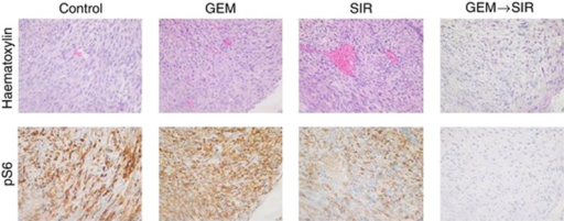 Immunohistochemistry of pS6 in leiomyosarcoma xenograft samples. Sirolimus is able to reverse the hyperactivation of the mTOR pathway caused by gemcitabine in leiomyosarcoma xenografts. GEM=gemcitabine; SIR=sirolimus.
