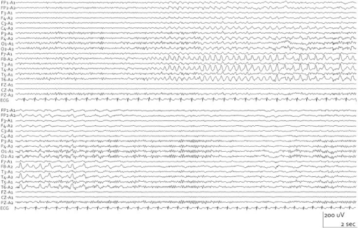 Electroencephalography displayed with a monopolar montage in the 10–20 system. Rhythmic discharge was apparent in the right temporal area (F8, T4, T6). Onset of ictal discharge was clinically associated with cold shivers and piloerection.