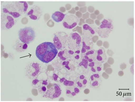 Specimen from bronchoalveolar lavage displays some macrophages, neutrophilic granulocytes, and large plasmoblastic/plasmocytoid-like elements (arrow) with basophilic cytoplasm and paranuclear vacuole (May Grunwald Giemsa, magnification ×400).