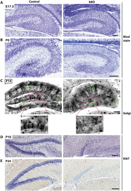 Brpf1 loss impairs dentate gyrus development, dendritic tree formation and neuronal proliferation.(A-B) Nissl staining of coronal brain sections from E17.5 and P0 mice. At P0, loss of Brpf1 resulted in underdevelopment of the suprapyramidal blade (sb) and disappearance of the infrapyramidal blade (ib) in the developing dentate gyrus. (C) Golgi-Cox staining of coronal brain sections at P19. Representative images of hippocampal regions from the wild-type and bKO brain sections show that the bKO hippocampus possessed disorganized neurons, with less robust dendritic trees. There were also fewer neurons in the mutant dentate gyrus. Red asterisks denote areas accidentally torn during staining. The boxed regions in the top panels are shown in the lower panels at higher magnification. (D-E) Ki67 immunohistochemistry showing that cell proliferation dramatically decreased in the subgranular zone of the bKO dentate gyrus at P10 and P24. The subgranular zones of the control P10 and P24 sections shown here contain 20 and 34 Ki67+ cells, respectively, whereas the corresponding regions of the mutant sections possess either one or no Ki67+ cells. Scale bars, 100 μm for (A-B & D-E) and 200 μm for (C).