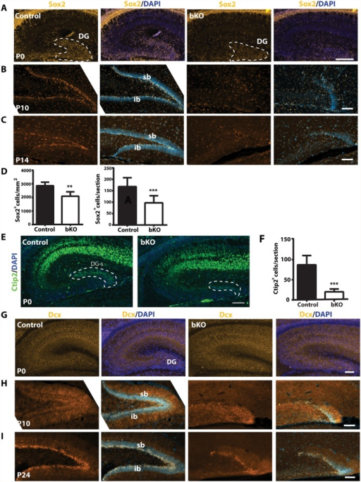 Brpf1 loss compromises neural stem cells and neuronal precursors.(A-C) Immunofluorescence microscopy to detect Sox2+ neural stem cells (NSCs) on peri- or postnatal brain sections. At P0, Sox2+ NSCs were enriched in the wild-type dentate gyrus (DG) and this population was smaller in the mutant, as quantified in (D). At P10 and P14, Sox2+ NSCs settled in the control subgranular zone (SGZ), while in the mutant, the granule cell layers were hypoplastic and the SGZ harbored few Sox2+ NSCs. (D) Quantification of Sox2+ cells in the control and mutant dentate gyri at P0. There were significantly fewer Sox2+ NSCs within the mutant dentate gyrus per section (right). The number of Sox2+ cells per mm2 within the dentate gyrus also significantly decreased (left). The quantification was based on three pairs of neonates and at least three matched sections per brain. **p<0.01; ***p<0.001. (E) In the hippocampus, Ctip2 expression was restricted to the CA regions and the suprapyramidal blade of the developing dentate gyrus (DG-s) at P0. (F) Quantification of Ctip2+ cells in the wild-type and mutant suprapyramidal blades, outlined in (E), was based on three pairs of neonates and at least three matched sections per brain. ***p<0.001. (G-I) Dcx expression in control and bKO brain sections at three developmental stages. In the mutant dentate gyrus, there were fewer Dcx+ neuronal precursors apparently at P10 (H) and P24 (I). Scale bars: (A-C), 100 μm; (E), 400 μm, (G-I), 100 μm.