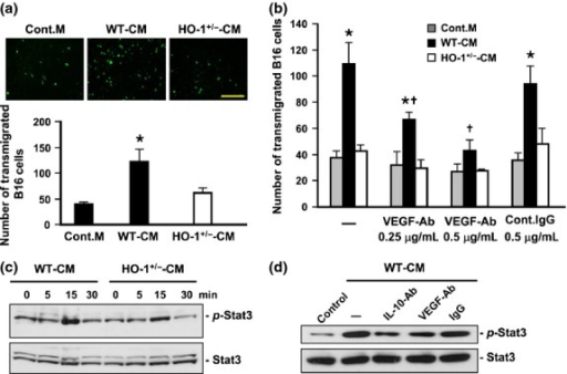 Myeloid heme oxygenase-1 (HO-1)-induced vascular endothelial growth factor (VEGF) and interleukin-10 (IL-10) promote transendothelial migration and STAT3 activation of tumor cells. (a) Representative micrograph of CMFDA labeled-B16F10 cells transmigrated through endothelium-coated transwell filters in response to control medium or indicated bone marrow-derived macrophage conditional medium (BMDM-CM). Bar = 500 μm. The quantitative data are mean ± SE of three independent experiments. *P < 0.02 versus control medium. (b) B16F10 cell transendothelial migrations induced by various BMDM-CM were performed in the absence or presence of indicated antibodies. Data are mean ± SE of four independent experiments. *P < 0.02 versus control medium; †P < 0.05 versus WT-CM without antibody pretreatment. (c) B16F10 cells were treated with WT or HO-1+/− BMDM-CM for indicated times. The levels of phospho-STAT3 and STAT3 examined by western blot analysis. (d) WT BMDM-CM pre-incubated with or without indicated antibody (1 μg/mL) for 30 min was used to treat B16F10 cells for 15 min. The levels of phospho-STAT3 and STAT3 examined by western blot analysis. CM, conditional medium.