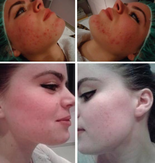 Result of patient treatment with low dose of isotretinoin