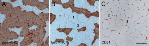 Fibre type composition and capillarisation.Example of serial cross-sectional images of vastus lateralis muscle biopsies immunostained for (A) slow myosin heavy chain (MHC), (B) fast MHC, and (C) the endothelial cell marker CD31. Numbers mark identical slow muscle fibres in the section series. Scale bar: 50 μm.