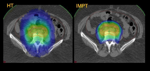 Example of Volume covered by 20 Gy (V20Gy, blue) for a patient with EFRT, HT vs IMPT.