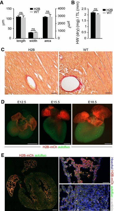 Assessment of cardiac morphology in H2B-mCh mice and H2B-mCh expression during embryonic development. a Exclusion of hypertrophic effects of the transgene in Langendorff dissociated adult CMs. N = 3 animals per group; n > 110 CMs per group. b Comparison of heart weight to tibia length between 10-week-old male αMHC-H2B-mCh transgenic and wt littermates (n = 3). c Sections of H2B-mCh and wt hearts stained with Picrosirius red for collagen. Scale bar 100 µm. d Macroscopic pictures of E12.5, E15.5, and E18.5 H2B-mCh transgenic hearts illustrate the expression of the fusion protein in atrial and some ventricular CM nuclei. Scale bar 500 µm. e Section of an E15.5 H2B-mCh heart (left picture) displays strong expression in atrial CM nuclei (right upper picture) and weak expression in some ventricular trabecular CMs (right lower picture). Scale bars 200 µm (overview), 50 µm (close-ups)