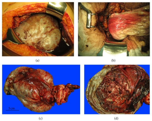 Operative findings. (a) The right ovary is markedly enlarged and contains a carcinoma. (b) The large ovarian tumor is removed via a vertical midline incision after abdominal drainage is performed. (c) The excised tumor mass is 20 cm in diameter. The uterus and left ovary are macroscopically normal. (d) The tumor mass contains septations and papillary solid lesions.