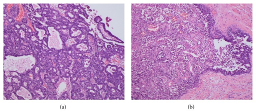 Pathological findings. (a) A grade 1 endometrioid adenocarcinoma is characterized by glandular patterns resembling those of the endometrium. (b) Extensive necrosis of the endometrioid carcinoma (left side). (a-b) Hematoxylin and eosin staining (magnification, ×100).