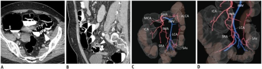 53-year-old woman with sigmoid chronic diverticulitis was referred for surgery because of symptomatic disease.A, B. Pre-operative computed tomography colonography to assess presence of diverticula (arrowhead in A) and sigmoid colon wall thickening (arrowhead in B) related to disease. C, D. Three-dimensional-fused images demonstrate sigmoid arteries (SAs) branching from left colic artery (LCA) and accessory left colic artery (ALCA) branching from middle colic artery (MCA); LCA and SAs run anteriorly to inferior mesenteric vein (IMV). ICA = ileocolic artery, IMA = inferior mesenteric artery, SMA = superior mesenteric artery, SRA = superior rectal artery