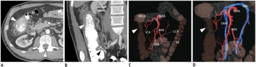 "32-year-old man with severe Crohn's disease.Axial and coronal computed tomography colonography images (A, B) show involvement of distal ileum and right and transverse colon, causing colonic wall thickening with characteristic ""cobblestone"" appearance of mucosa (arrowhead), together with perivisceral ""comb sign"" and enlarged lymph nodes. Three-dimensional-fused images (C, D) demonstrate ileocolic artery (ICA) running posteriorly to superior mesenteric vein (SMV), absence of right colic artery, and inferior mesenteric vein (IMV) draining into SMV, together with characteristic wall thickening (arrowhead). IMA = inferior mesenteric artery, LCA = left colic artery, MCA = middle colic artery, SA = sigmoid artery, SMA = superior mesenteric artery, SMV = superior mesenteric vein, SRA = superior rectal artery"