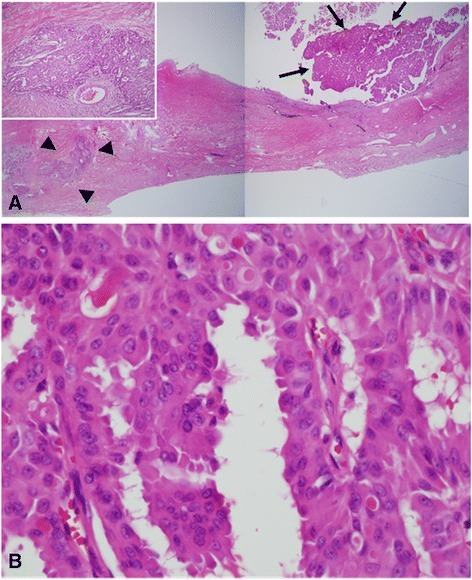 "Microscopic findings show an intracystic papillary projection composed of some ill-defined tumor nests in the fibrotic wall, representing the in situ lesion of the tumor (black arrows, a, H&E, 10×). Note the invasive components (black arrowheads, a, H&E) adjacent to the in situ lesion (A 10×; inset, 100×). The tumor cells have abundant eosinophilic cytoplasm and vesicular nuclei with focal ""apocrine-like"" decapitation secretion (b, H&E, 400×), suggesting apocrine gland carcinoma"