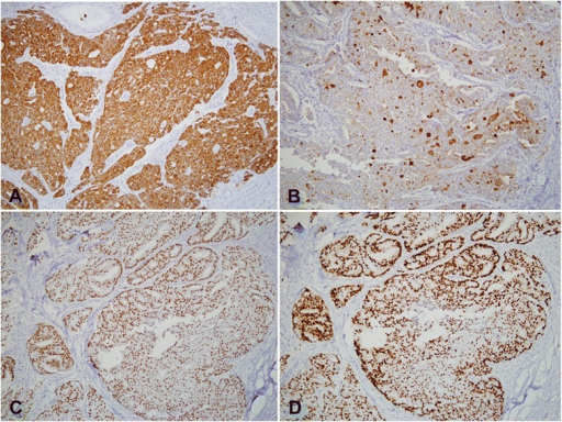 Immunohistochemistry findings show that the tumor cells are positive for cytokeratin AE1/AE3 (a) and gross cystic disease fluid protein (GCDFP)-15 (b). The tumor cells also express estrogen (c) and progesterone receptors (d) (a–d, 200×)