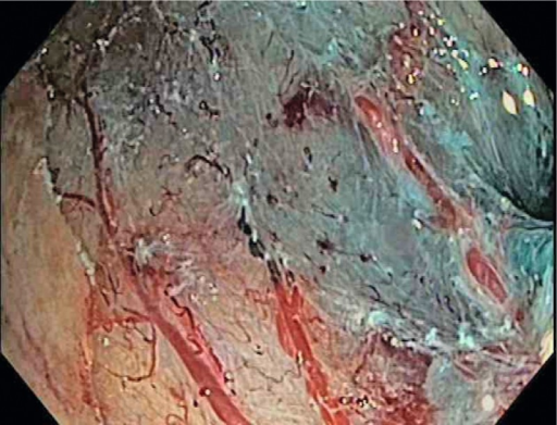 Post-EMR defect site showing the rich duodenal vascularisation.