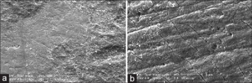SEM image of the polished enamel which was exposed to Kharazmi iron drop for 5 min. (a) According to this figure, some minor irregularities, porosity, cracks, and fractures can be seen on the enamel surface (1000×). (b) According to this figure, some minor irregularities, porosity, cracks, and fractures can be seen on the enamel surface (3000×)