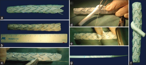 Technique of device modification using an iliac stent graft limb. (a) The iliac limb was deployed in vitro; (b) An elliptical graftotomy was created in the third stent using vascular scissors; (c) A PTFE graft was anastomosed end-to-side to the modified limb; (d) The strut of the arm graft was secured helically to the iliac limb; (e) The arm graft was tailored, and sewed with a marker at each end for orientation; (f) The modified IBD was completed and (g) reloaded into a sheath. IBD: Iliac branch device; PTFE: Polytetrafluoroethylene.